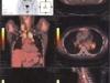 scanning1
