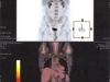 scanning2